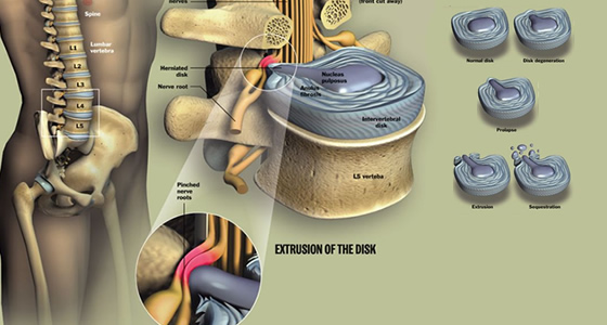 "Herniated / ""Slipped Disc"""